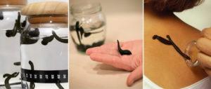 Лечение пиявками польза и вред в домашних условиях