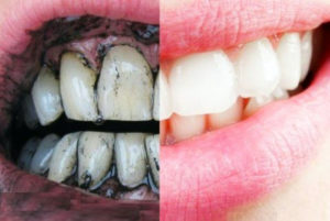 Активированный уголь для зубов вред или польза