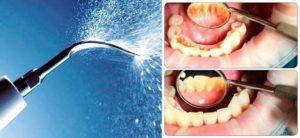 Air flow чистка зубов вред и польза