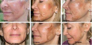 Химический пилинг для лица польза и вред