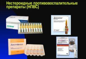 Нестероидные препараты что это такое вред и польза