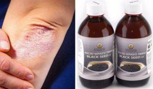 Масло черного тмина польза и вред для женщин